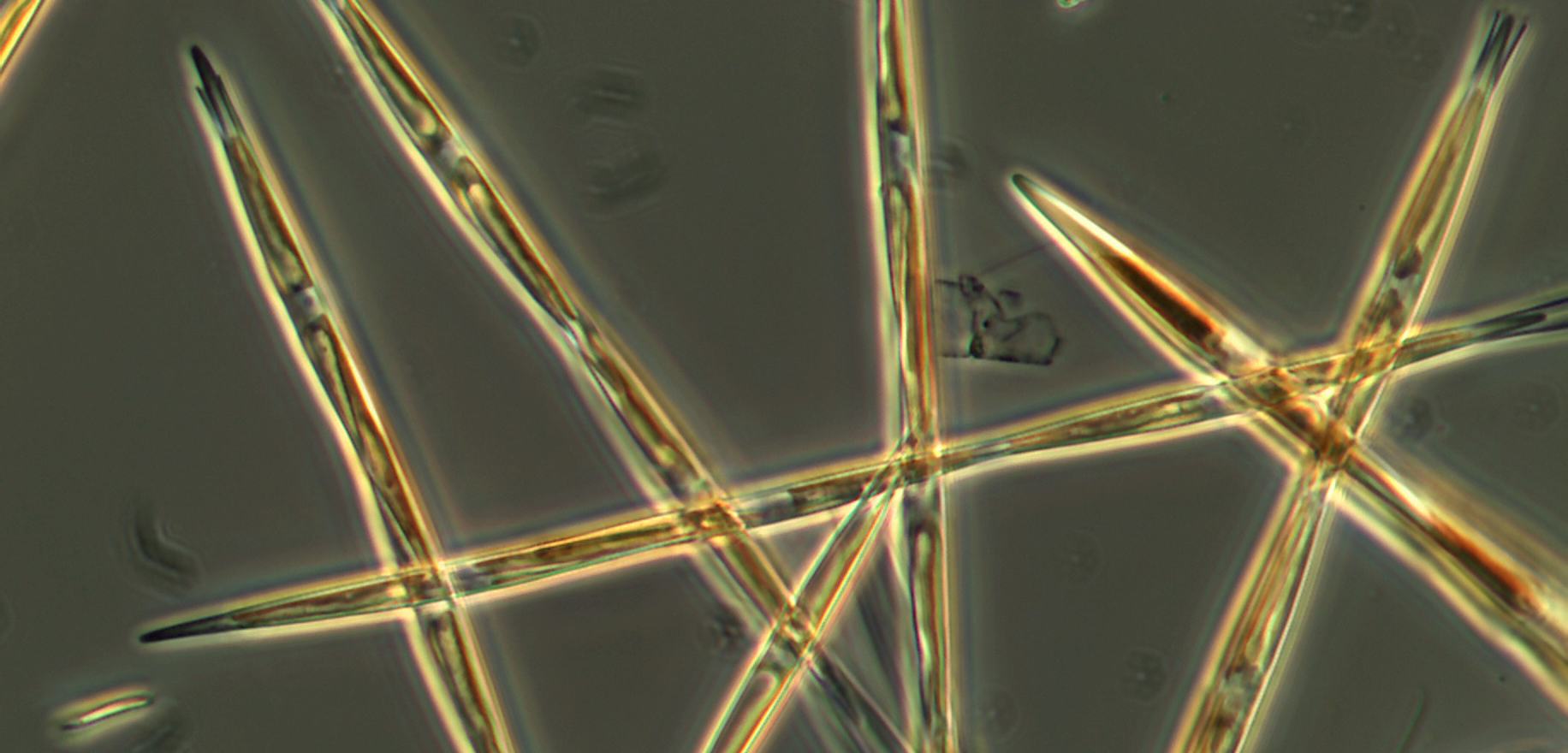 Algae in the genus Pseudo-nitzschia produce domoic acid, a toxin that can cause amnesic shellfish poisoning. Photo by NOAA Fisheries/NWFSC