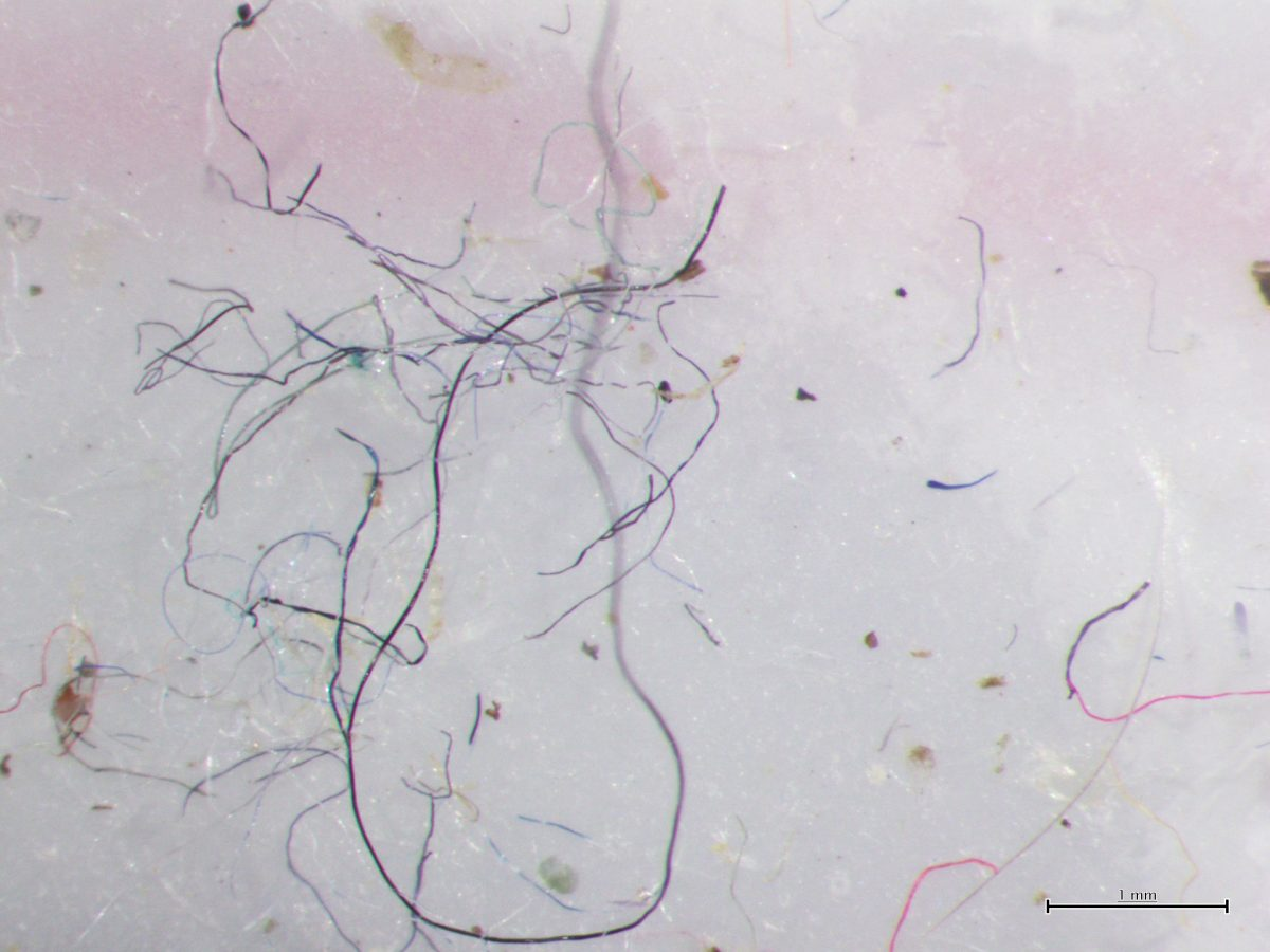 These microfibers are ubiquitous in the ocean, from the deepest waters to the surface waves. Photo courtesy of the Ocean Wise Conservation Association