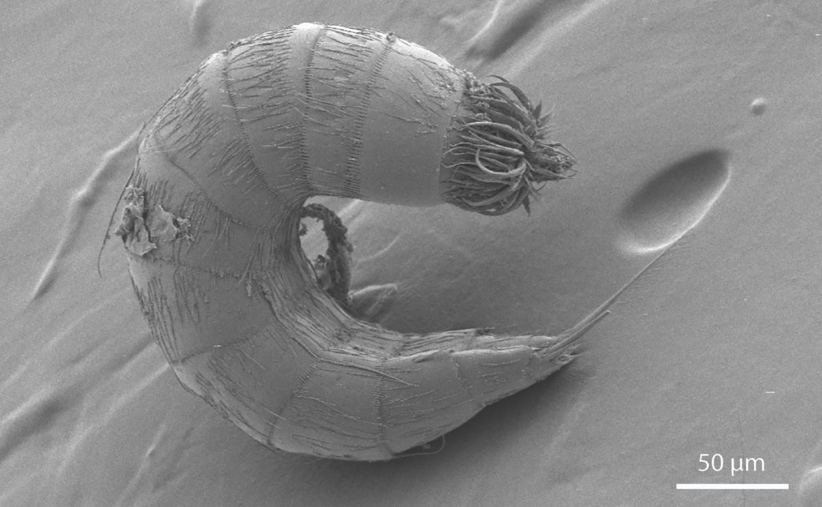 A scanning electron micrograph of a kinorhynch or mud dragon